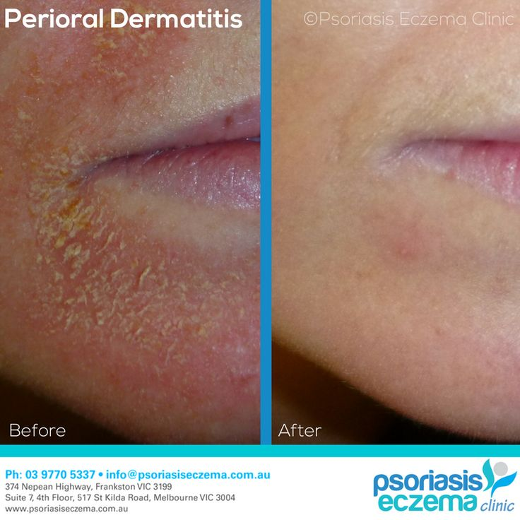 Perioral Dermatitis Before and After Results! After just 2 weeks of treatment the skin is completely clear! At the Psoriasis Eczema Clinic, we provide natural solutions based on medical research to treat the symptoms and address the underlying triggers of skin conditions. Contact us today to find out how we can help you! #integrative #dermatology #natural #treatment #solutions