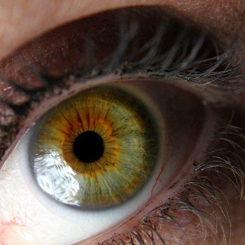 211 best Heterochromia images on Pinterest