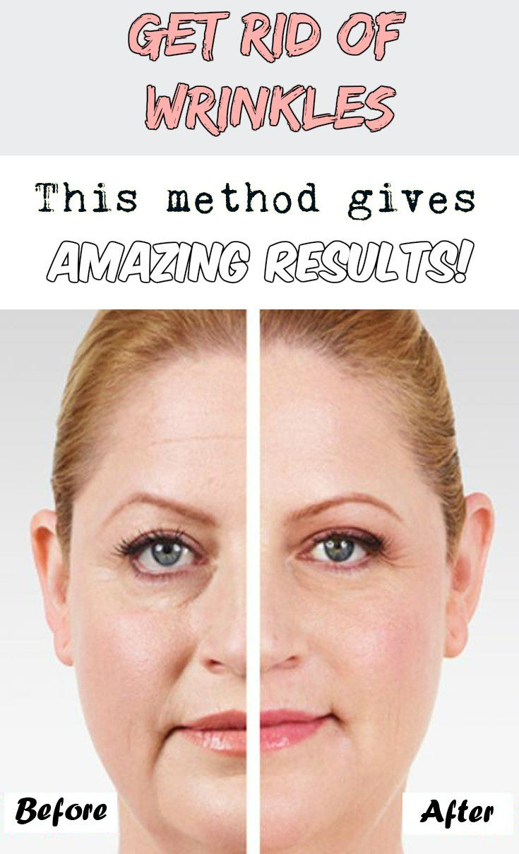 Get rid of wrinkles! This method gives amazing results!
