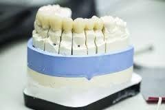 Wir sind die Zahnarztpraxis für die ganz Familie und bieten Ihnen an unseren zwei Standorten in Ludwigsburg und Stuttgart das gesamte Spektrum der modernen Zahnmedizin, angefangen bei der ästhetischen Zahnmedizin, über die Behandlung von Angstpatienten (auch in Narkose) bis hin zu den Zahnimplantaten.  www.zahnarzt-stuttgart.tv  #Zahnarzt_Stuttgart #Zahnimplantate_Stuttgart