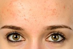Home Remedies for Painless Bumps on the Forehead   1mhealthtips