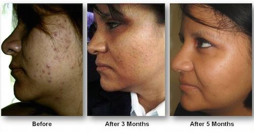 No longer pasty from retinol creams to treat acne this young lady is enjoying the natural glow of her own skin.  Transformation inside and out!