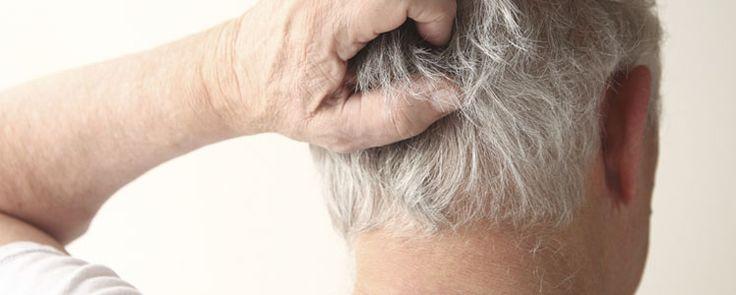 Você acha que seu couro cabeludo tem freqüentemente coceira?Seu couro cabeludo deteriora-se com a inflamação?A maioria de nós não tem os melhores cuidados com o cabelo, mas o couro cabeludo é que realmente suporta o nosso cabelo.E o resultado, uma condição chamada de dermatite seborréica, caspa, couro cabeludo seco e ...