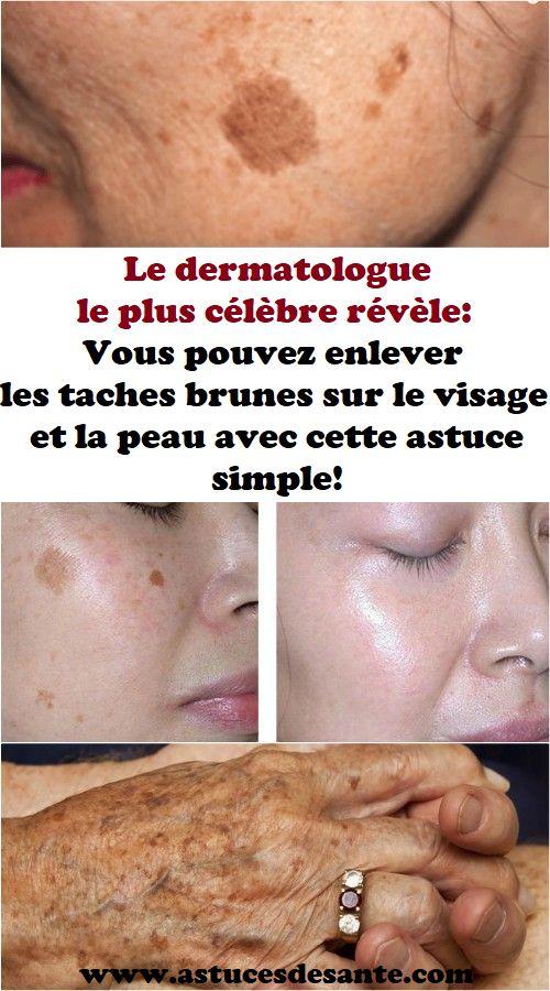 Le dermatologue le plus célèbre révèle: Vous pouvez enlever les taches brunes sur le visage et la peau avec cette astuce simple! #dermatologue #tachesbrunes #visage #peau #soinsdelapeau