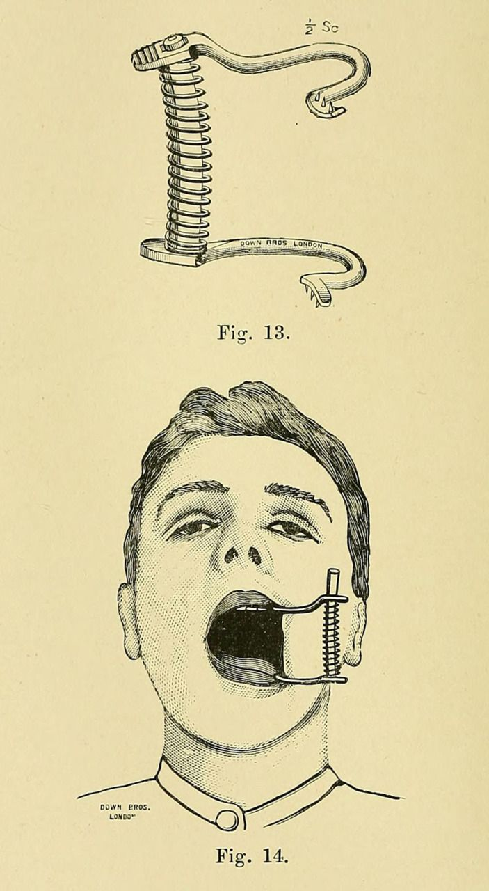 """☞ MD ☆☆☆ """"Down Brothers' Gag"""" ~ """"It is perfectly self-sustaining, owing to the presence of small sharp teeth which bite into the gum behind the molars."""", 1900"""