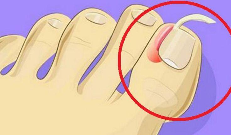 Combattere le unghie incarnite: 6 rimedi fatti in casa ...