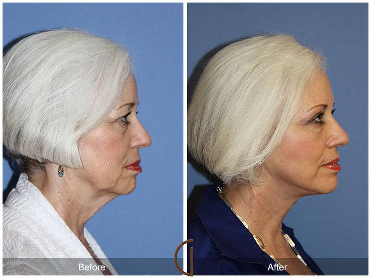 Dr. Kevin Sadati notes that people who are in their early middle ages may not require a traditional facelift surgery, but there are still cosmetic surgery procedure options available that can target specific problem areas.