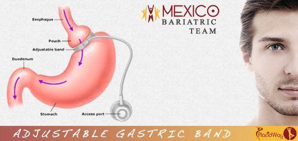 #adjustable_gastric_band #permanently #adjustable …