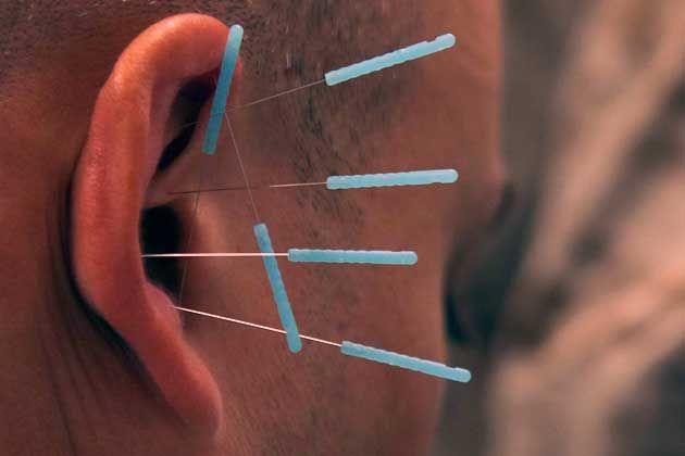 Studie belegt biologischen Effekt von Akupunktur . . . http://www.grenzwissenschaft-aktuell.de/studie-belegt-biologischen-effekt-von-akupunktur20170704/