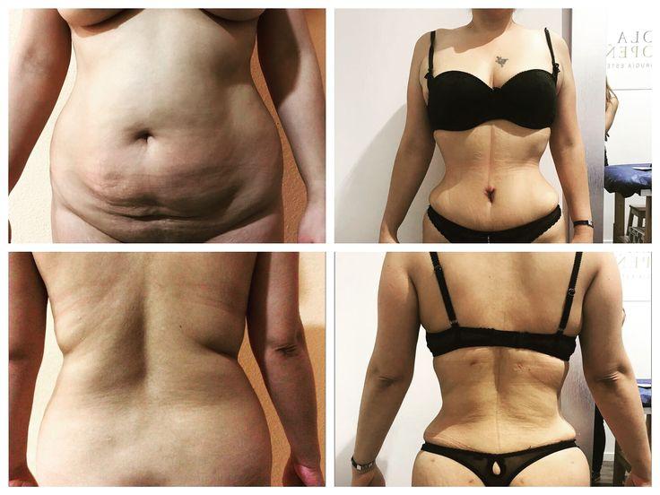 Liposuctie / liposuction of the body 😍