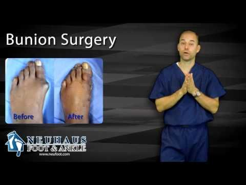 What To Expect After Bunion Surgery - YouTube