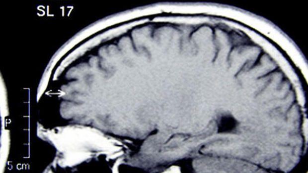 ER visits for traumatic #braininjury spike 30 percent #neuroskills