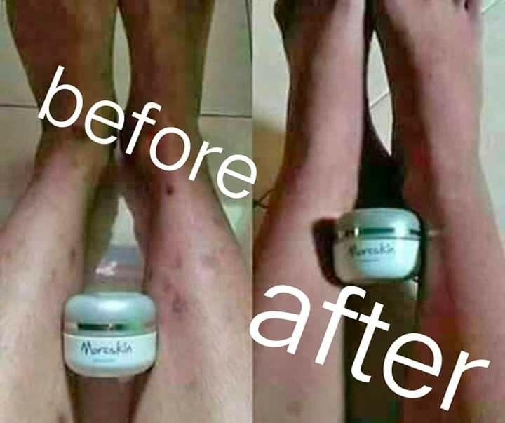 Pakai Cream Gatal Di Bagian Yg Berjerawat