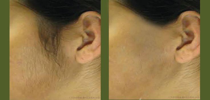 Gelatin Peel Off Mask To Remove Facial Hair!
