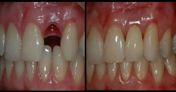 Rosną nowe zęby przez 9 tygodni, procedury, który jest dostępny w każdym wieku!