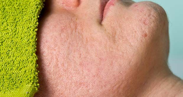 Comment traiter les cicatrices d'acné naturellement ? 7 remèdes naturels contre les traces d'acné. Des traitements naturels pour effacer les traces d'acné.