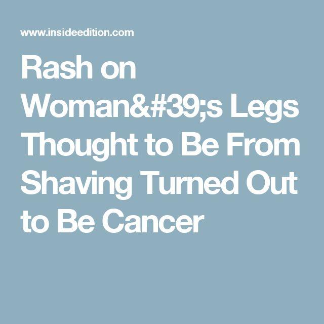 25+ Best Ideas About Rash On Legs On Pinterest