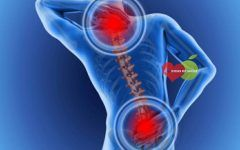Hérnia de Disco – O que é, Sintomas e Tratamentos