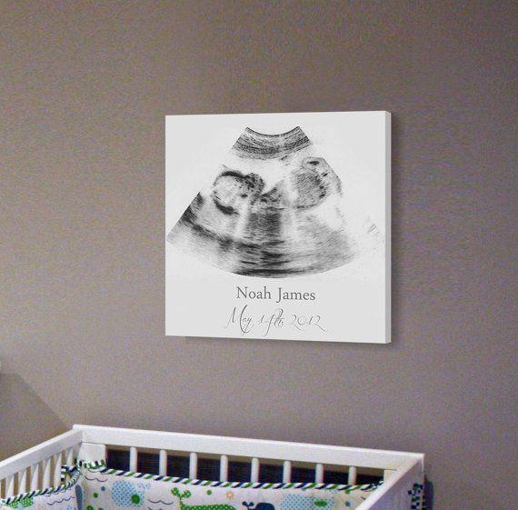 Sonogram Frame Idea 8x8 On Professional by UltrasoundArtwork, $59.00