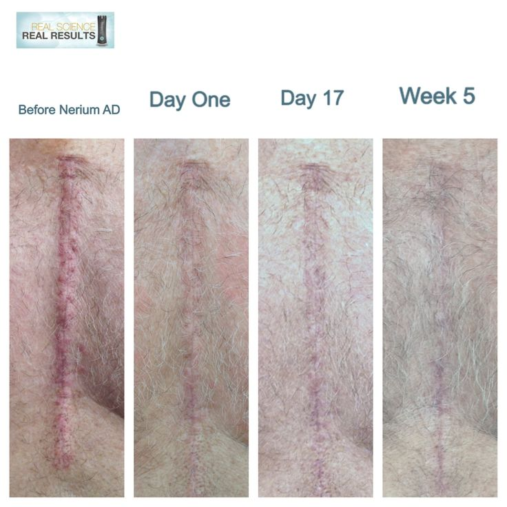My dads open heart surgery scar on nerium ad go to
