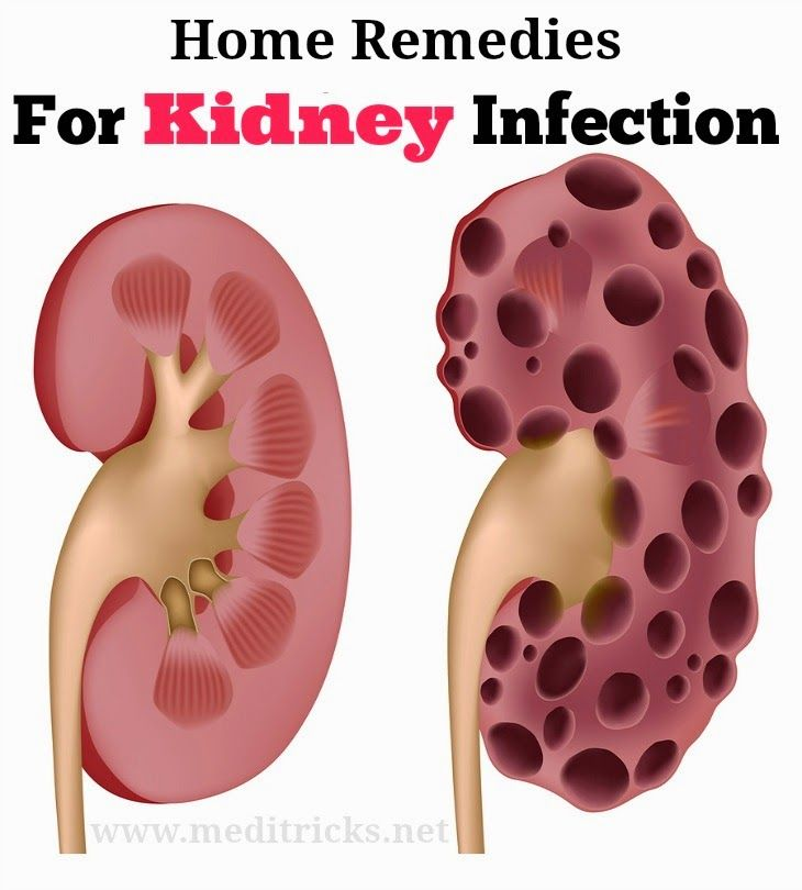 Home Remedies and Homeopathic Remedies for Kidney Infection Treatment