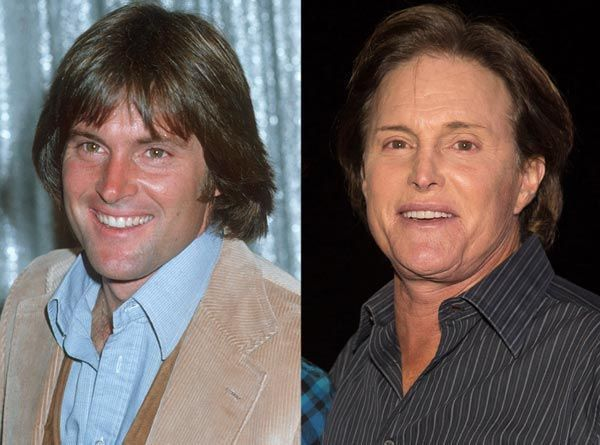 Bruce Jenner Plastic Surgery – Bad Facelift Before & After – plasticsurgerytal…