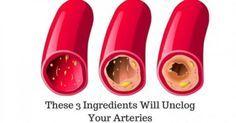Ο ρόλος που παίζουν οι αρτηρίες στο σώμα μας είναι πολύ σημαντικός, καθώς μεταφέρουν οξυγόνο και θρεπτικά συστατικά στην καρδιά και το μεγαλύτερο ποσοστό τ