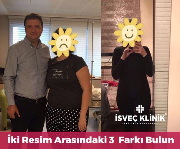 iki resim arasındaki 3 Farkı Bulun  1- Biz Yaptık  2- Muhteşem Oldu  3- Sağlınıza yeniden kavuştunuz ☎️ 02122155535 #isvecklinik #obez #obezite #obezitecerrahisi #tüpmide #midekucultme #sağlık #istanbul
