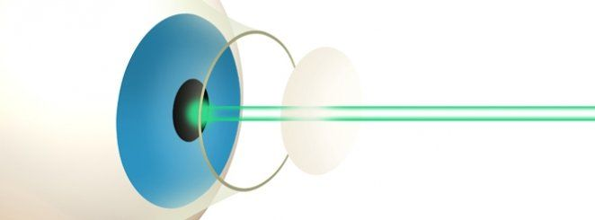 Laser Eye Surgery – What is It? #laser #operation #for #eyes #cost, #laser #eye #surgery http://mesa.nef2.com/laser-eye-surgery-what-is-it-laser-operation-for-eyes-cost-laser-eye-surgery/  # What is Laser Eye Surgery? Laser eye surgery is an umbrella term for several eye surgeries used to correct refractive errors (i.e. how your eye focuses light). The most common types of laser eye surgery include LASIK, PRK, LASEK and EpiLASIK. Each of the four laser eye surgery procedures below uses the…
