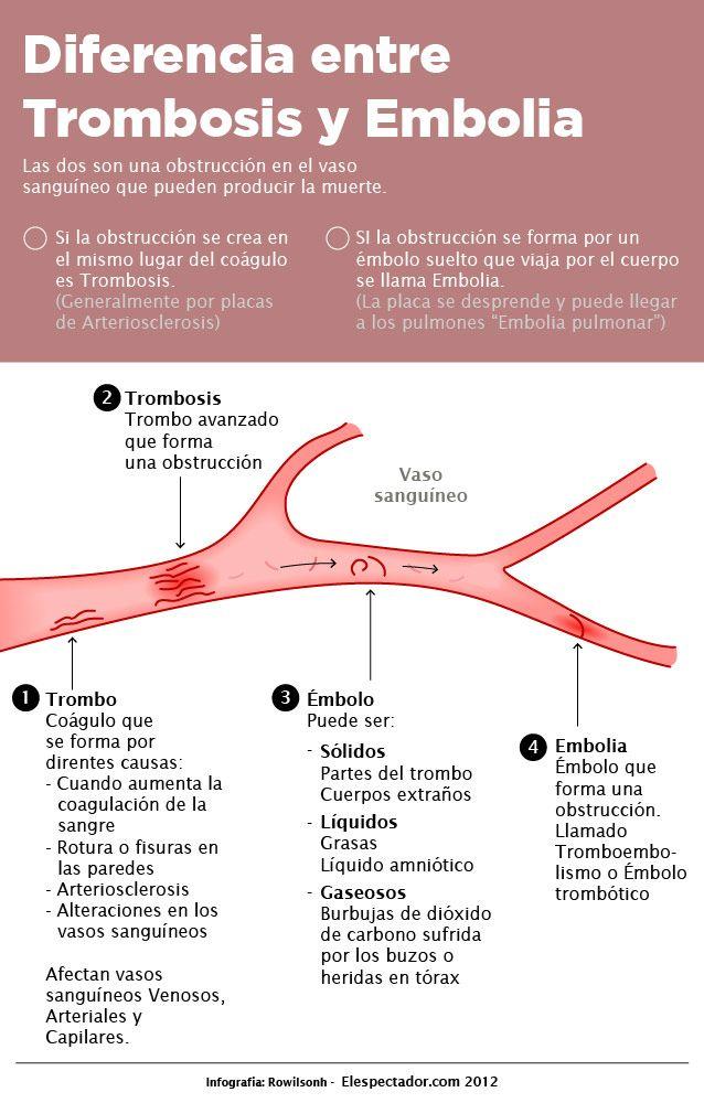 Diferencia entre trombosis y embolia #infografia