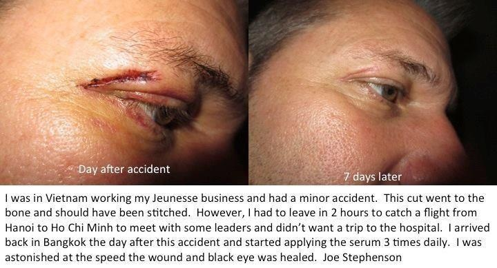 Luminesce is for ANY skin situation. Because the 200+ Human Growth Factors communicate with YOUR stem cells you can rest assured whatever you need it to do it will!