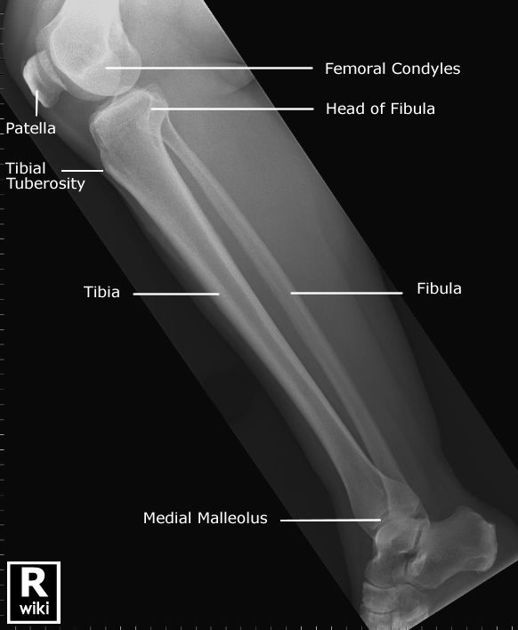71 Best Radiographic Anatomy Images On Pinterest Rad Tech Human