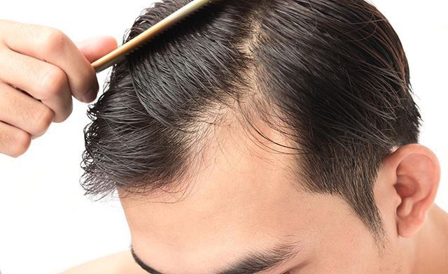 "Platelet-Rich Plasma Treatment for Hair Loss  . By now most know about the ""Vampire Facial"" but did you know about the Vampire Hair Regrowth treatment? Yes there's a similar treatment for hair loss and it also requires your blood.  . This is a non-invasive treatment that can maximize hair regrowth in about 12 months. The best part is your hair grows back naturally!  . #CoreMedicalandWellness #PRP #hairregrowth #hair #style #hairrestoration #prphairrestoration #blood #hairthickness #beauty…"