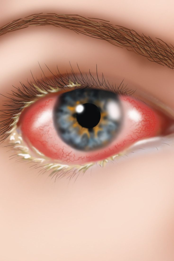 What Is Pink Eye And How Can You Prevent It?