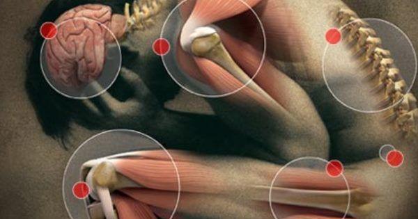 Débarrassez-vous de la goutte, de l'arthrite et la douleur de la fibromyalgie rapidement avec ces 3 remèdes naturels