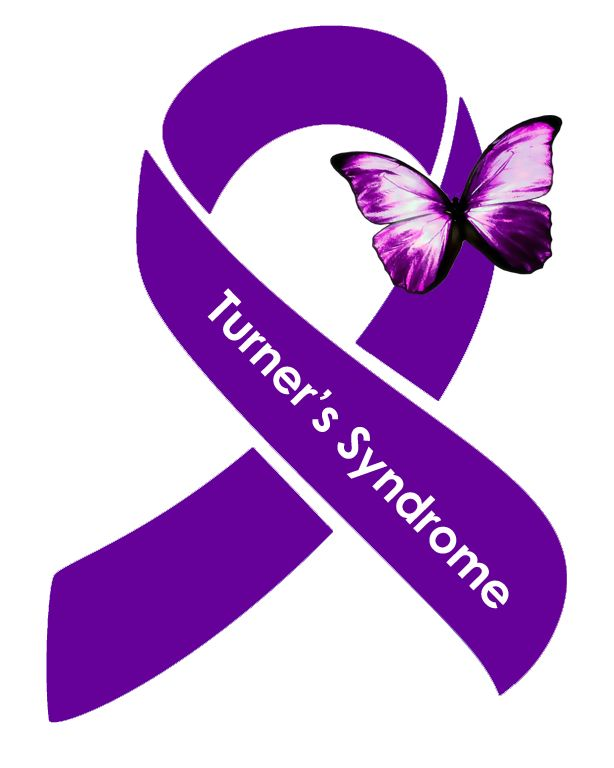 "Turner's Syndrome occurs in 1 out of every 2,500 live female births. 98% of babies that are conceived with TS do not survive, but the fight does not stop there. Public knowledge is surprisingly limited. Caused by a missing X chromosome, Turner's Syndrome is typically not something that is inherited and many doctors believe it is just a random thing. I unfortunately have had this ""random thing"" happen 3 times. All 3 of my daughters lost their battles shortly after birth."