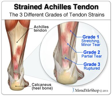 Ankle sprains and strains are categorizes according to severity: Mild, Moderate, and Severe (rupture). #anklesprain
