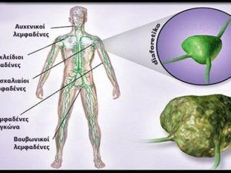 Good News - Καλά Νέα  (JW): Σκoρδόγαλο. Θεραπεύει το άσθμα, την πνευμονία, τη ...