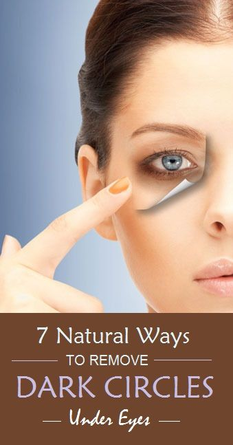Natural Ways To Remove Dark Spots Under Eyes