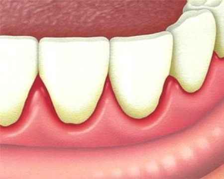 Afte bolle in bocca e sulla lingua di piccole dimensioni rosse possono comportare bruciore pizzicore sintomi come riconoscere prevenire e curare l'afta foto