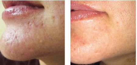 The Dermaroller is very effective at reducing ice pick scars caused by acne. Great results can be achieved in just a few months using a 1.0 mm – 1.5 mm