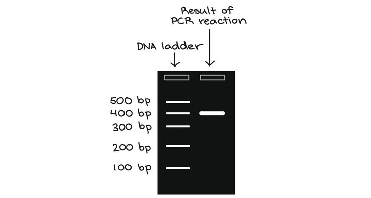 Left Lane Dna Ladder With 100 200 300 400 500 Bp Bands Right Lane Result Of Pcr Reaction A Band At 400 Bp Dna Technology Reactions Dna Sequence