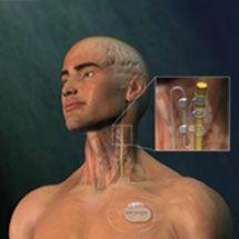 Vagus nerve stimulation | Epilepsy Society