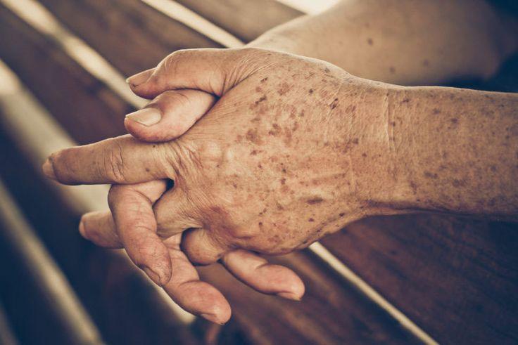 Las manchas de la edad, también conocidas como lentigos solares, son unas manchas tostadas, marrones o negras que aparecen en la piel. Varían en tamaño y se observan con mayor frecuencia en la cara, manos, hombros y brazos - áreas que reciben la mayor exposición al sol. Es posible asociar manchas de la edad con los adultos mayores de 50, pero los adultos jóvenes pueden tenerlas también, especialmente si pasan mucho tiempo al sol. ¿Qué causa las manchas de la edad? Las manchas de la edad son…