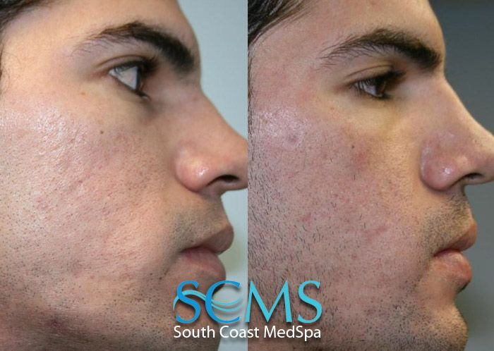 Best dating treatment ☝️ with acne 2021 scars Dating :