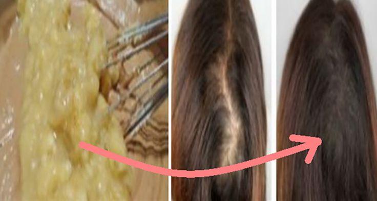Căderea părului este o probleme cu care se confruntă multe femei, chiar din tinerețe. Deosebit de afectate sunt doamnele cu părul lung. Desigur, căderea părului nu creează durere fizică, în schimb provoacă durere și disconfort psihologic, care sunt mult mai severe și pot duce la depresie și descreșterea încrederii în sine. Iată de ce părul are nevoie de o îngrijire la fel de serioasă ca organele vitale. Acest lucru ne-a determinat să-ți prezentăm astăzi un remediu eficient contra căderii…