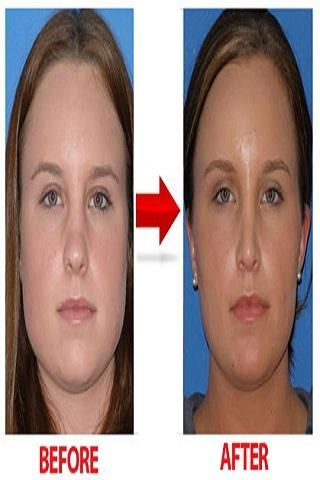 how to lose chin fat reddit