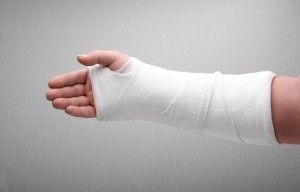 fractured arm