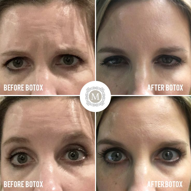 This Patient Had 40 Units Of Botox For Forehead Wrinkles  Frown Lines  Lines Between The Brow