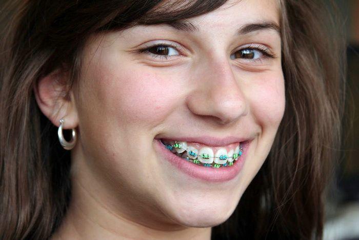 Cheap Braces For Girls